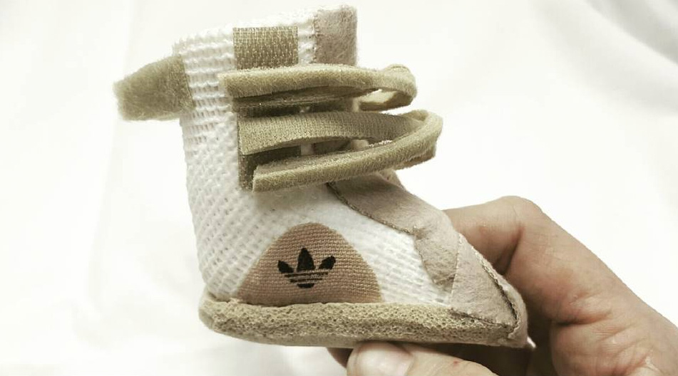 Making Yeezy Boost Casts for Kids